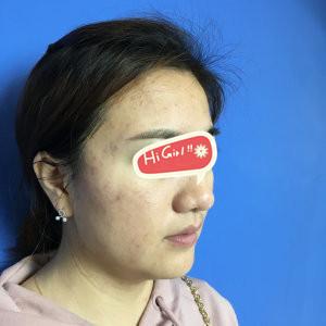 北京美奥整形医院红蓝光祛痘印案例 从痘脸到无暇肌肤的全记录