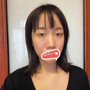 重庆天妃整形医院眼综合案例 大眼睛和双眼皮兼得 堪比换头