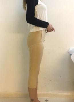 广州博仕整形医院高吉专家吸脂瘦大腿案例分享 模特般的腿