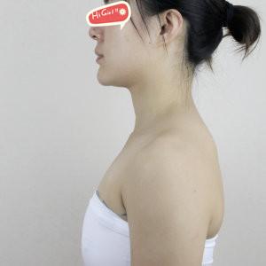 在北京叶美人整形医院做了假体隆胸 告别了我多年平坦的飞机场