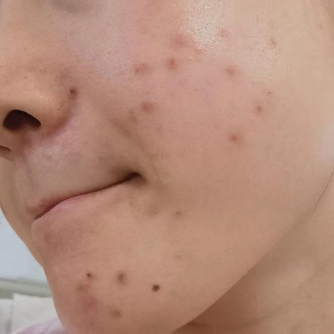 珠海平安整形医院光子嫩肤去痘印案例 光滑肌肤美如初见