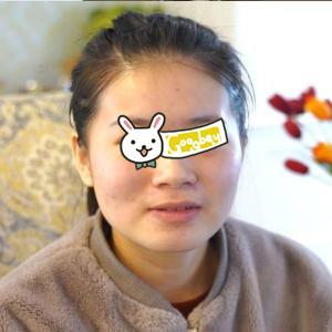 广州汝美整形医院面部吸脂瘦脸真实案例分享 日记恢复过程图分享