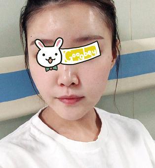 北京京韩整形医院光子嫩肤祛红血丝真实案例 肌肤水嫩剔透