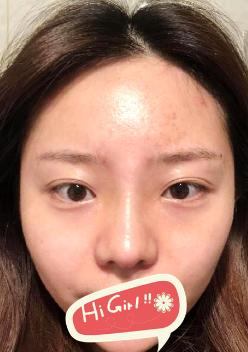 杭州华山连天美医疗专家~冷奎仿隆鼻修复案例~立体小翘鼻