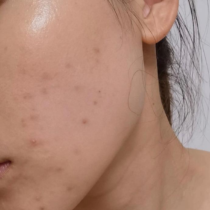 上海德媛医疗美容医院光子嫩肤祛痘印案例 详细感受分享