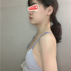 在北京焕星整形医院做了假体隆胸 一次变大两个罩杯 非常美