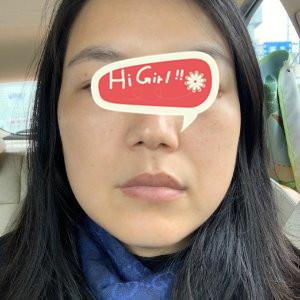 深圳颜美整形医院热玛吉提升案例 真人案例告诉你做热玛吉感受如何
