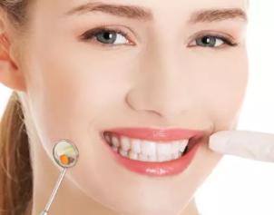 牙齿贴面是什么 听成都美绽美医院口腔科于淋详解