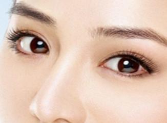 长春正韩医院【眼部整形】开眼角后 属于你的光彩