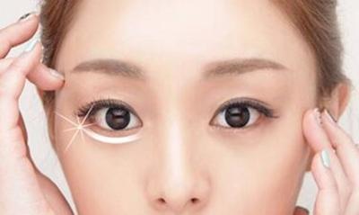 【去眼袋手术】内切/外切 微创无痕 恢复眼部年轻态