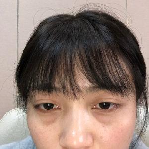 珠海美涵整形医院内切去眼袋案例 下垂的眼袋没了 找回了我的青春