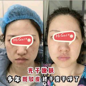深圳美汇整形医院光子嫩肤改善皮肤案例 让我拥有了少女肌