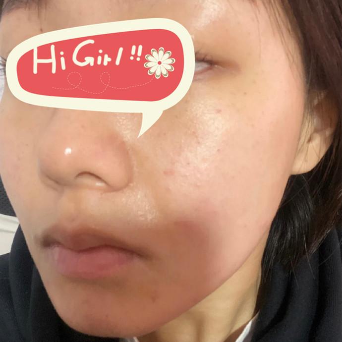 广州新时代整形医院黄金微针射频改善肤质案例 白到发光的肌肤如少女