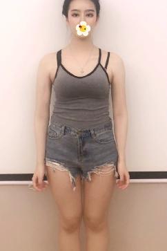 成都艾米丽美容医院专家潘红伟吸脂瘦大腿案例 笔直美腿