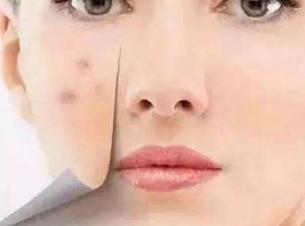 济南韩氏整形医院李秋丽做光子祛痘效果好吗 如何护理