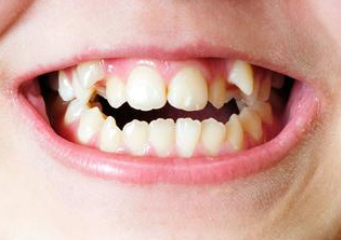 贵阳做牙齿矫正有年龄限制吗 罗幼刚做牙齿矫正疼吗 多少钱
