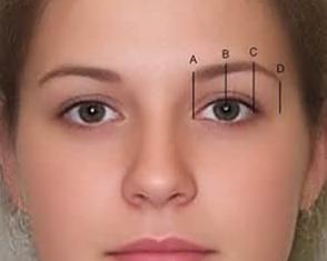 沈阳切眉专家名单 名流整形医院桓莉眉部整形技术好