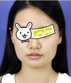 杭州下颌角整形 华山连天美专家高俊明医术高超 精致瓜子脸