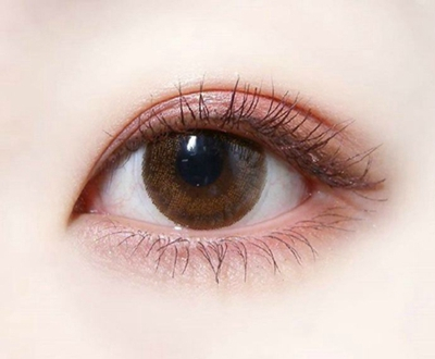 沈阳名流【全切双眼皮】个性设计 微创无痕 给你自然美