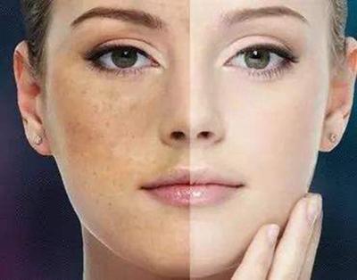 成都星美整形激光美白 恢复嫩白肌肤 效果长久