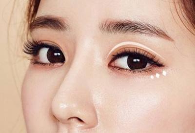 云南华美美莱李韬埋线双眼皮 个性设计 微创无痕 美眼更自然