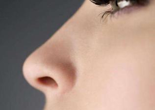 鼻歪治疗专家 歪鼻修复价格 长沙艺星整形医院周芳口碑