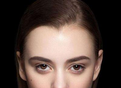 大连瑞丽植发美人尖种植 调整发际线修饰脸型