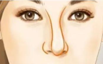 歪鼻矫正过程 大连艾加艾整形医院重塑面部比例
