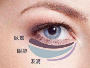贵阳美贝尔整形医院谭林做外切祛眼袋好吗 有哪些优势