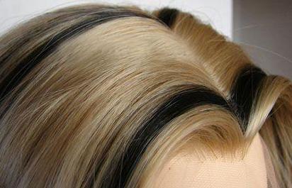 美人尖种植效果怎么样 北京世熙植发私人订制 效果加倍