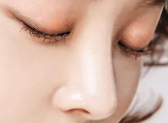 长沙亚韩整形医院高静做鼻尖整形效果自然 立体感十足