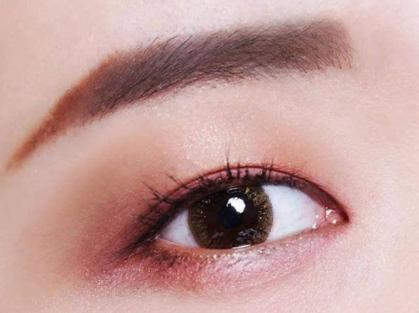 埋线双眼皮开了怎么办 西安周安整形医院埋线双眼皮能保持多久