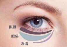 杭州韩佳【激光祛眼袋】价格特惠 定格青春