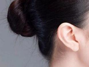 耳垂畸形修复专家及方法 推荐成都美绽美整形医院何一波