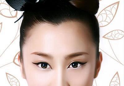 上海411医院植发科种美人尖好不好 价格贵不贵