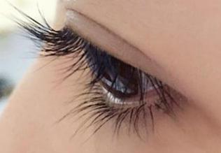 西安艾薇美整形王飞双眼皮修复效果自然 重现美丽