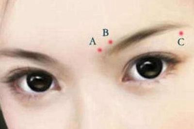 洛阳毛大夫【提眉术】一术多效 解决多种眼部问题