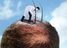 重庆军科整形毛作源植发专业吗 头顶加密效果是持久的吗