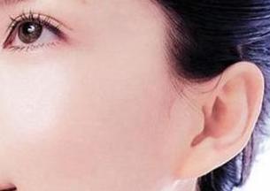 副耳整形是什么 芜湖壹加壹整形医院副耳整形多少钱