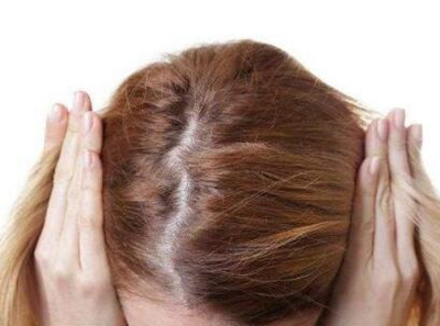 南京雍禾做头发加密的价格是多少 正规植发医院 价格透明