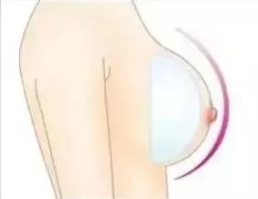 乳头缩小去哪儿好 重庆康雅整形医院口碑 呈现精致乳房