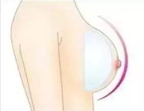 乳房下垂有危害 广州广大微创整形做乳房下垂矫正多少钱
