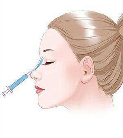 太原欧美莲南书宇做玻尿酸隆鼻好吗 效果能维持多久