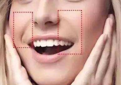 如何去除法令纹 重庆美莱单磊医生注射玻尿酸去法令纹能保持多久