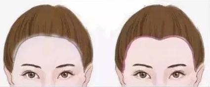 美人尖种植前需要注意哪些问题 沈阳科发源植发医院让颜值提升