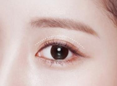 双眼皮修复成功率高吗 郑州天后整形医院郭晓光技术如何