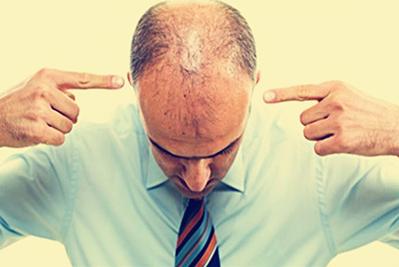 头顶加密恢复全过程解析 台州爱莱美植发医院头顶加密效果好吗