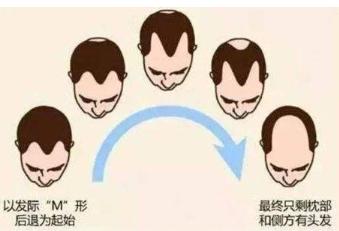 重庆华肤医院种植发怎么样 头顶加密多少钱