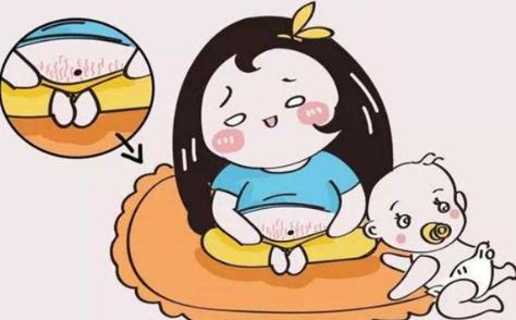 激光祛妊娠纹真的有用吗 深圳军科整形让您幸福无忧