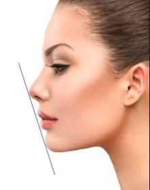 上海喜美童新辉院长假体隆鼻能维持多久 恢复期长吗